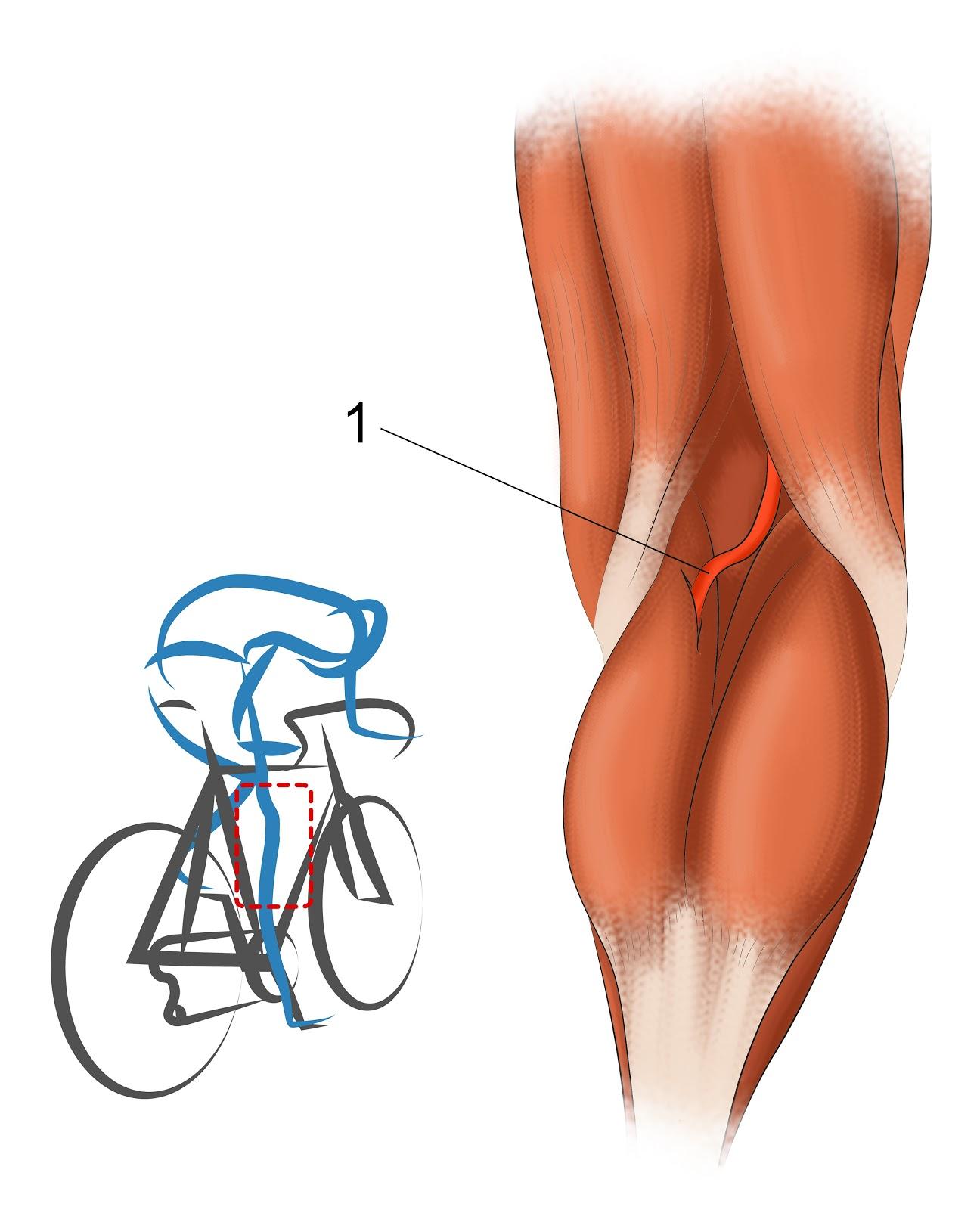 Une douleur au mollet: plusieurs diagnostics possibles